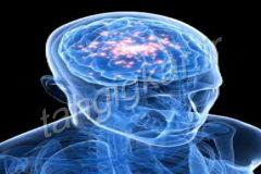 Tahgigkar.ir_Epilepsy